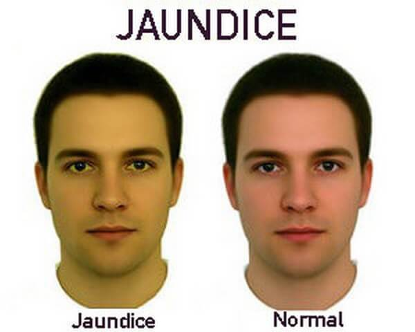 Jaundice is NOT Normal
