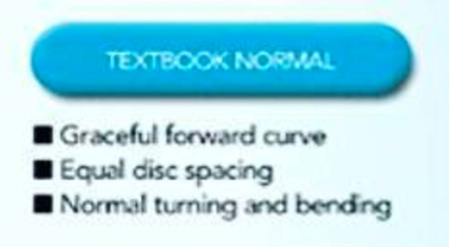 'Textbook Normal' Spinal Decay vs Dysfunctions, Degenerations